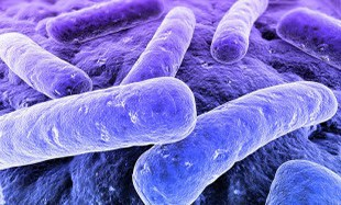 Curso Legionella